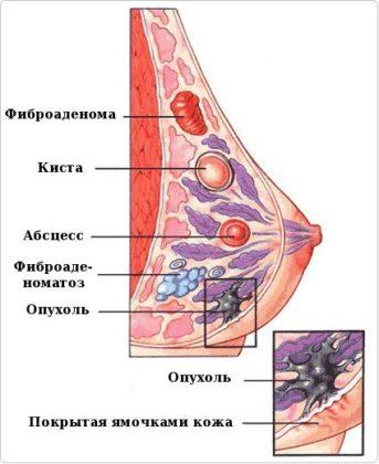 виды образований груди