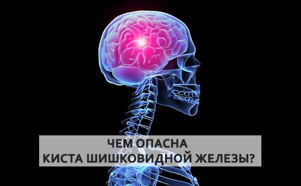 Симптомы кисты шишковидной железы головного мозга