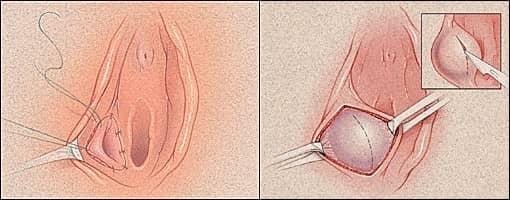 операция на половых губах