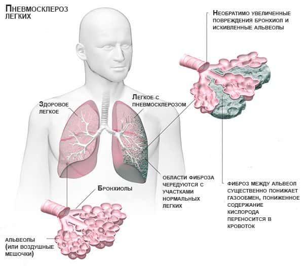 Легочный пневмосклероз