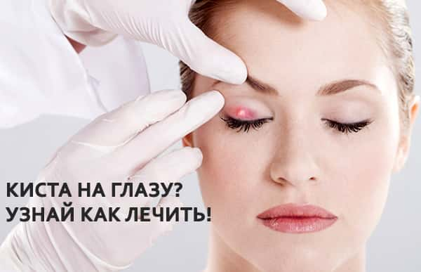что делать с глазом