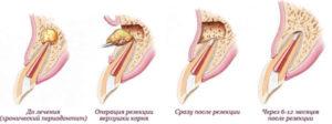 резекция зуба