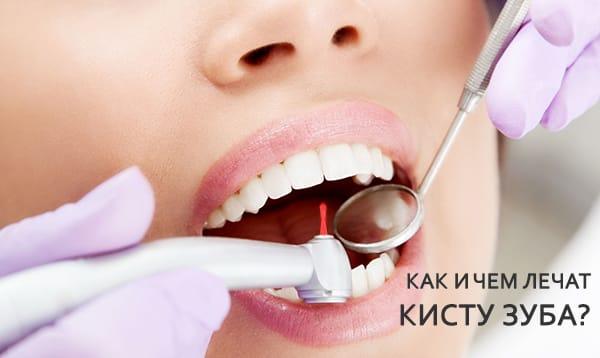 как лечить зуб