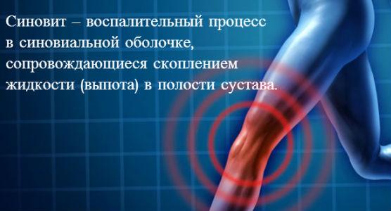 что такое синавит