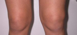 опухшие колени