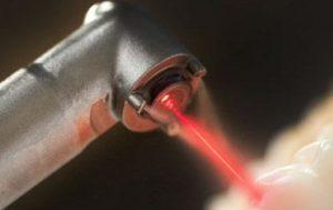лазерное лечение