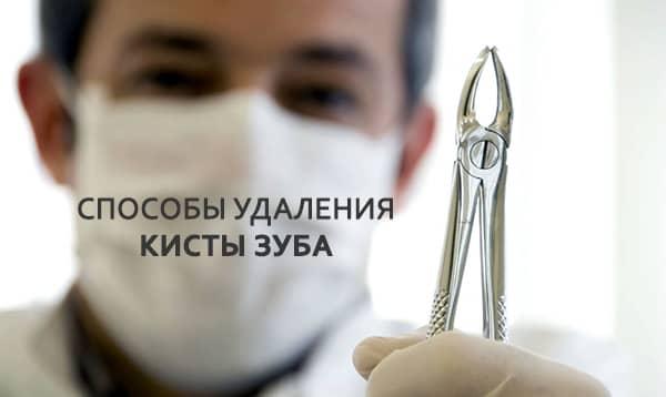 способы удаления зуба