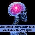 Симптом боли в голове