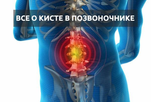 Что из себя представляют кисты позвоночника? Методики лечения
