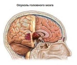 образование в голове