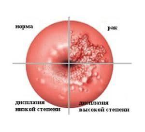 степени дисплазии