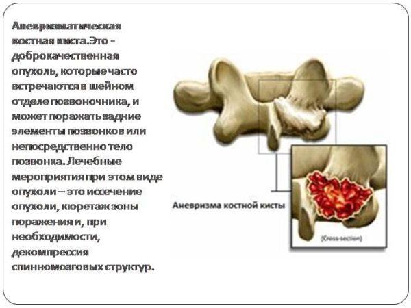 Аневризматическая опухоль