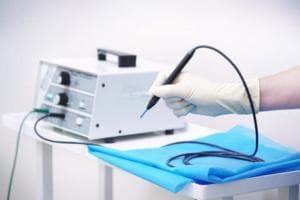 Радиоволновая хирургия