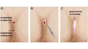 операция на копчике