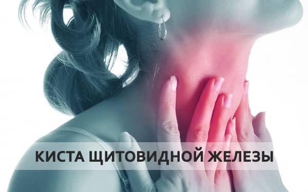 киста щитовидки