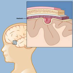 опухоль в голове