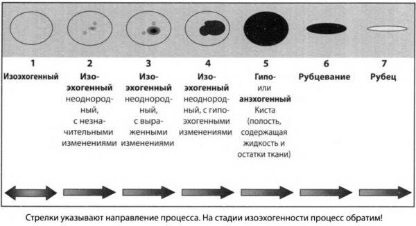 Изменения щитовидки