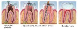 способ лечения зуба