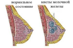 схема груди