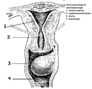 схема опухоли во влагалище