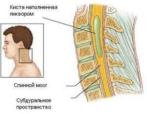 Сирингомиелическая киста