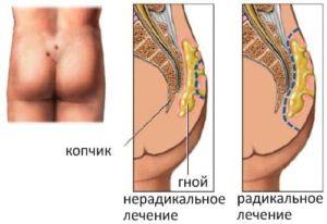 Кисты копчика: операция, реабилитация и возможные осложнения