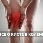 киста в колене