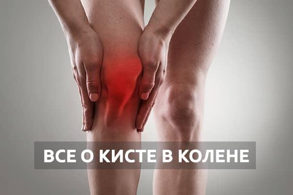 Киста колена лечение