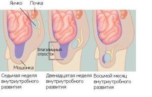 схема развития яичек