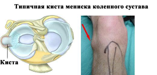 схема кисты в колене