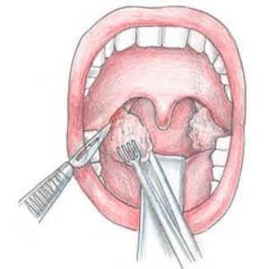 операция на миндалинах