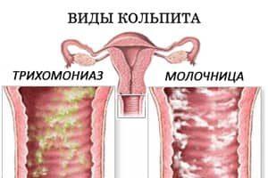 кольпит молочница