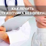 как лечить копчик без операции