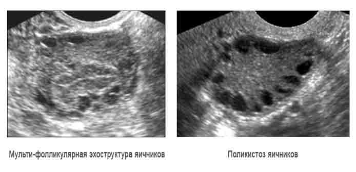 мультифолликулярные яичники и поликистоз