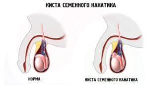 схема яичек с образованием