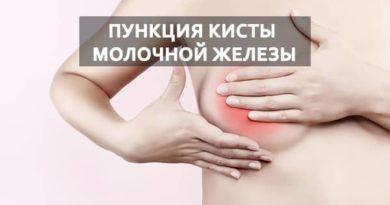 Все о пункции кисты молочной железы