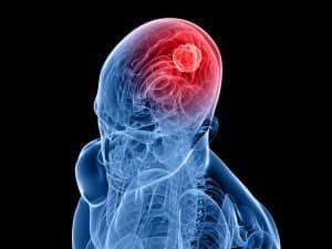 Особенности порэнцефалической кисты головного мозга