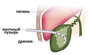 дренирование желчного пузыря
