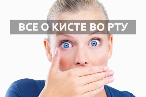 Как лечить кисту во рту
