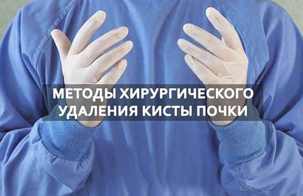 Операция по удалению кисты почки - Болезни почек человека, Кисты на почках (единичные и множественные)