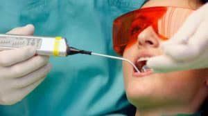 лазерное удаление кисты во рту