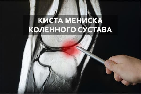 Киста мениска коленного сустава полная характеристика патологии