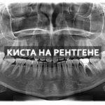 снимок зуба