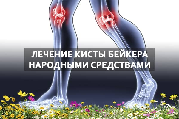 Народные методы лечения кисты беккера под коленом