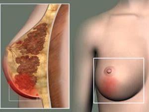 Воспаление кисты молочной железы симптомы