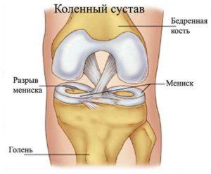 Киста мениска коленного сустава желчный пузырь и боли в суставах