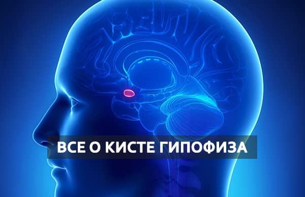 Киста на гипофизе головного мозга последствия