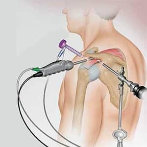 артроскопия плеча