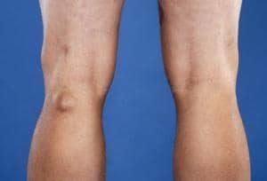 опухоль сзади колена