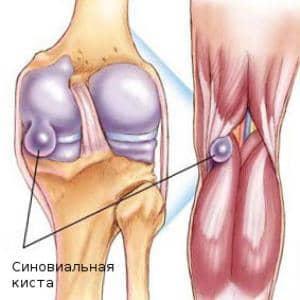 Изображение - Синовиальная киста дугоотросчатого сустава позвоночника sinovialnaya-kista